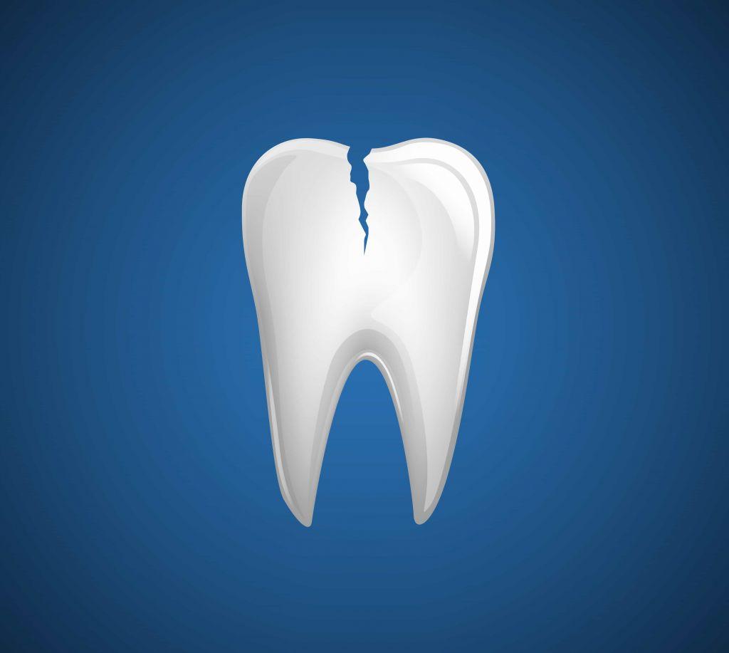 Reperation af knækket tand   Smertefri behandling   TG150.dk